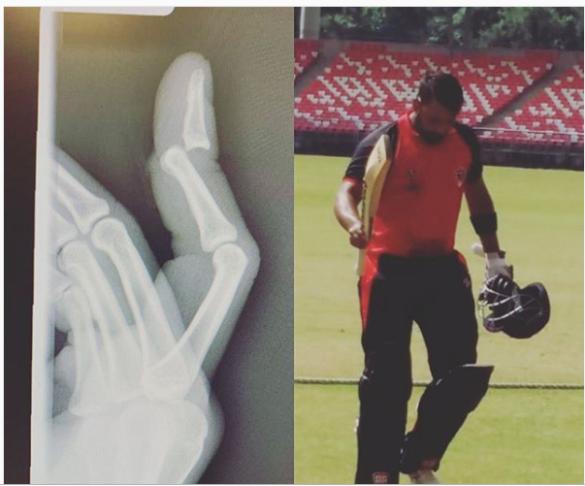 कभी पूरी तरह से टूट चुकी थी उंगुली, अब विजय हजारे में शतक लगाकर भारतीय टीम के लिए ठोका दावा 20