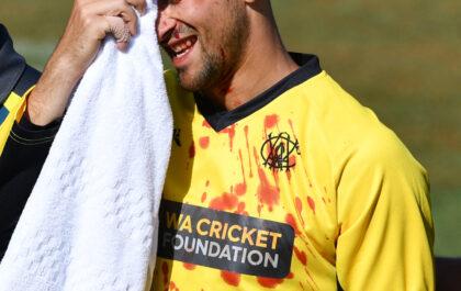 ऑस्ट्रेलिया के इस खिलाड़ी को अपने भाई का कैच लेने के दौरान लगी चोट, हुए लहुलुहान 2