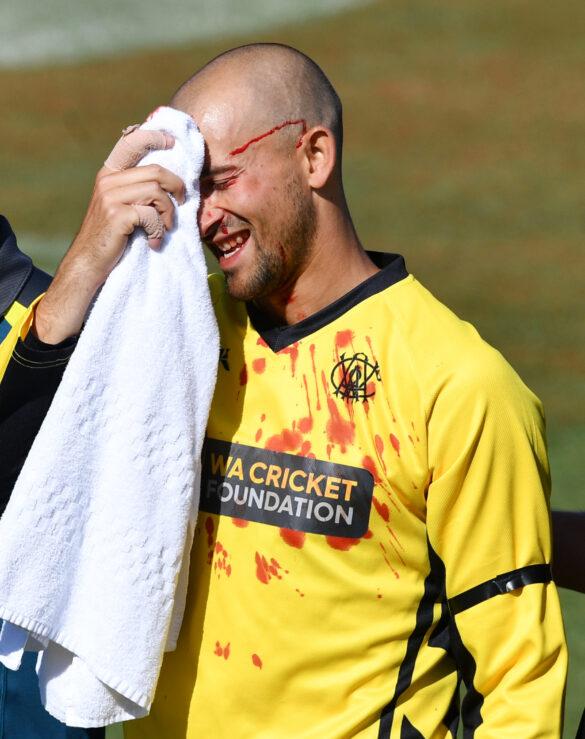 ऑस्ट्रेलिया के इस खिलाड़ी को अपने भाई का कैच लेने के दौरान लगी चोट, हुए लहुलुहान 4